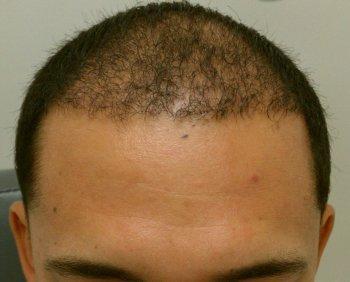 Hair Transplant & AFR