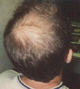 Hair Loss Genes