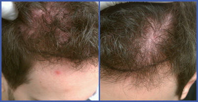 photos of hair loss from creatine