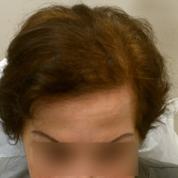Woman After Hair Transplant