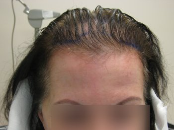 Woman Before Hair Transplant