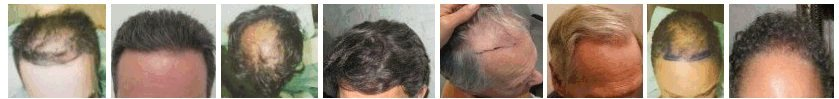 Hair Transplant Before &amp; After