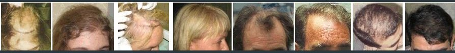 hair transplant photos - before & after