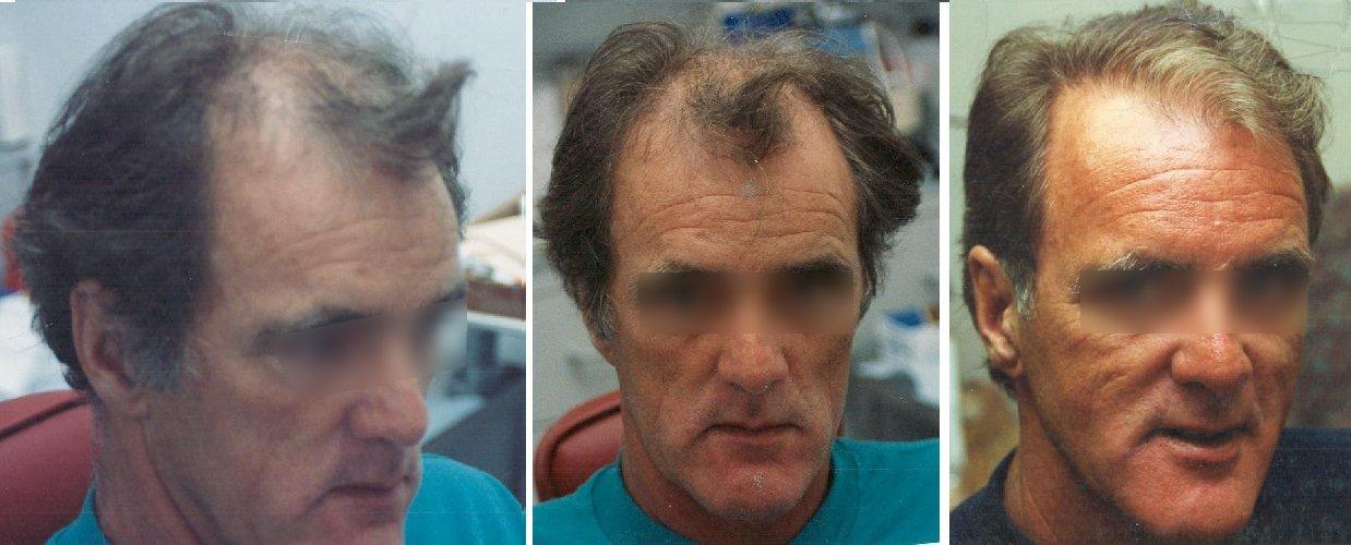 Hair loss surgery hair replacement surgery hair surgery before after hair loss surgery urmus Gallery
