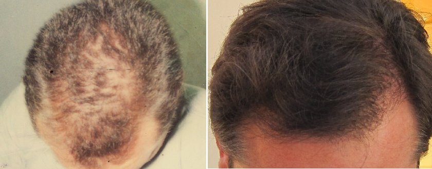 before after hair transplant photos