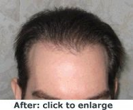 After Photo of Hair Transplant for Men